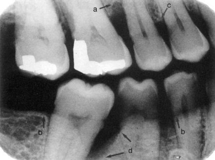 periodontal bone loss