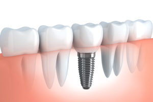 United Dental Group Parramatta Dentist Implants Service