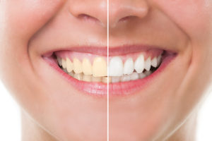 United Dental Group Parramatta Dentist Teeth Whitening Service